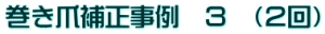 sample_hosei_jirei03