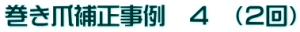 sample_hosei_jirei04